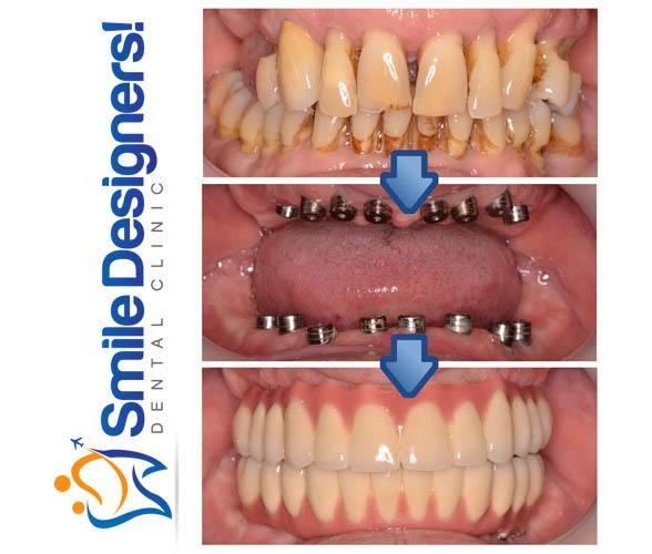 implants dentaires maroc