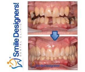 quels sont les meilleurs implants dentaires