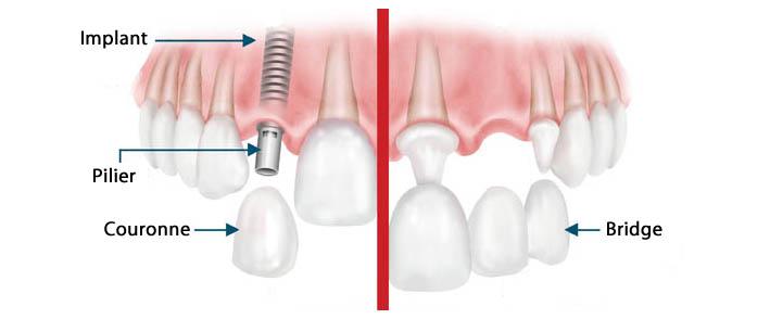 coûts implants dentaires