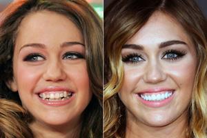 facette dentaire lumineers