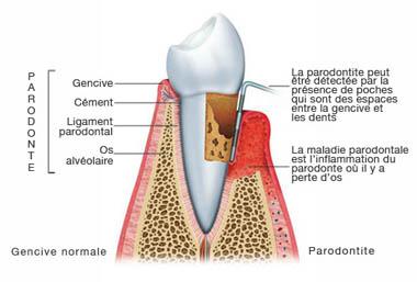poche-parodontal