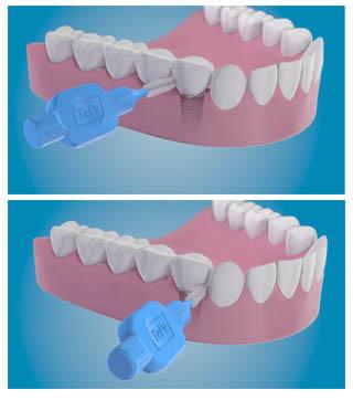 comment nettoyer les dents sur implants dentaires. Black Bedroom Furniture Sets. Home Design Ideas