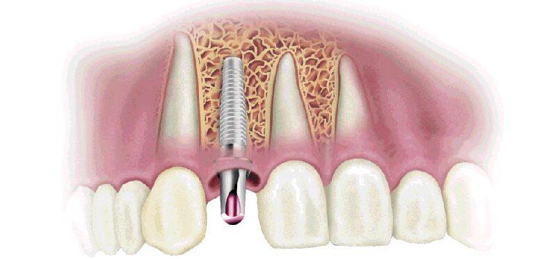 pose de l implant dentaire tout de suite apr s l extraction. Black Bedroom Furniture Sets. Home Design Ideas