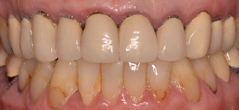 dents pivot devant