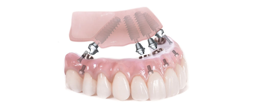 6 ou 8 implants dentaires pour une proth se fixe. Black Bedroom Furniture Sets. Home Design Ideas