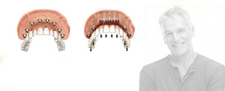 bridge complet solution fixe sur implants dentaires. Black Bedroom Furniture Sets. Home Design Ideas