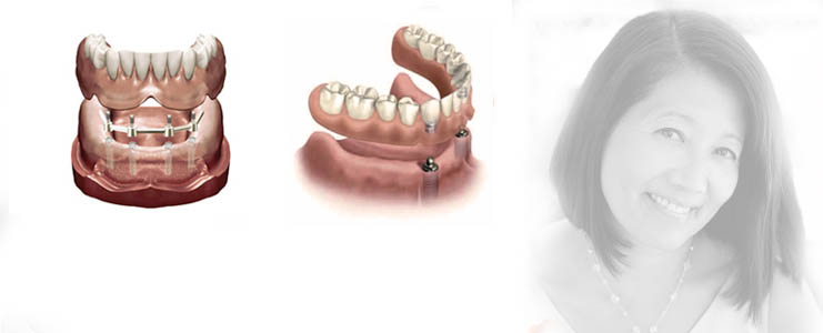prothese-sur-implants-slider2