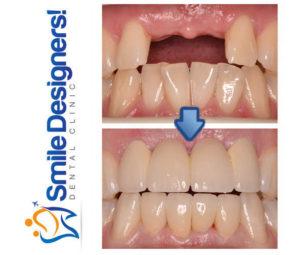 bridge-dentaire-ref1