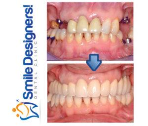bridge-sur-implants-dentaires-ref1