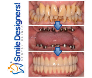 bridge-sur-implants-dentaires-ref3