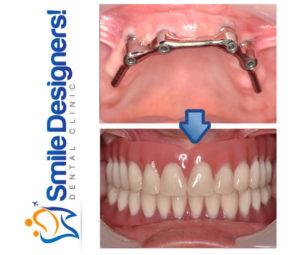 prothese-sur-implants--ref4