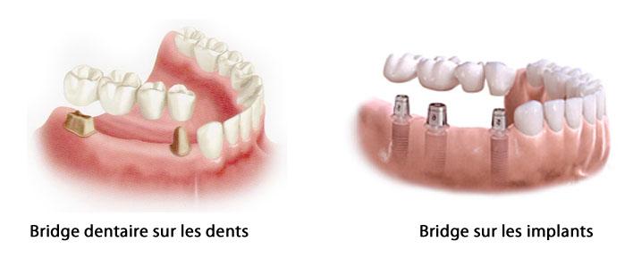 implant-bridge-sur-implants