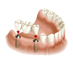 bridge-sur-implants-slider2