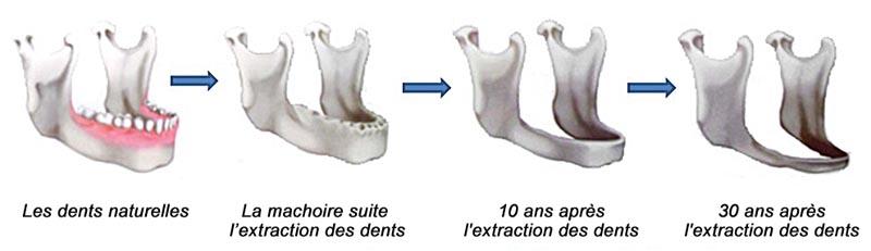 L'atrophie des mâchoires après l'extraction des dents