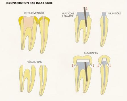 Par-inlay-core