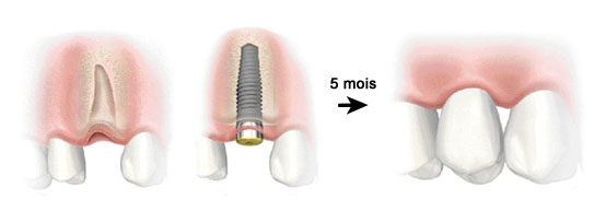 implant-dentaire-immediat (2)