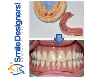 prothese-sur-implants--ref5